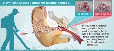 Graphic of how noise damages hair cells, causes hearing loss