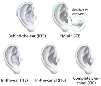 image of different types of hearing aids