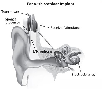 ear with cochlear implant